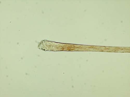 Forensic Science Hair